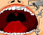 Çürük Diş Çekme