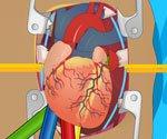 Kalp Ameliyatı Oyunu